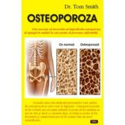 Osteoporoza - Dr. Tom Smith