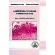 Acantoliza in bolile dermatologice (Mariana Costache, Daniela Ciochina)