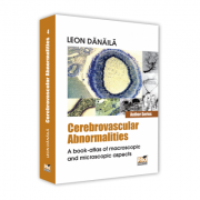 Cerebrovascular abnormalities. A book-atlas of macroscopic and microscopic aspects - Leon Danaila