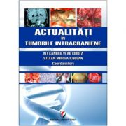 Actualitati in tumorile intracraniene