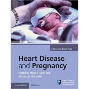 Heart Disease and Pregnancy - Philip J. Steer, Michael A. Gatzoulis