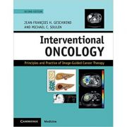 Interventional Oncology: Principles and Practice of Image-Guided Cancer Therapy - Jean-Francois H. Geschwind, Michael C. Soulen