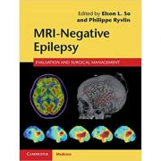 MRI-Negative Epilepsy: Evaluation and Surgical Management - Elson L. So, Philippe Ryvlin