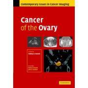 Cancer of the Ovary - Rodney Reznek