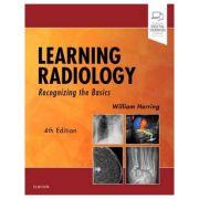 Learning Radiology: Recognizing the Basics - William Herring