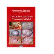 Cancerul de ovar. O provocare clinica - Mihaela Camelia Tirnovanu, Stefan Dragos Tirnovanu