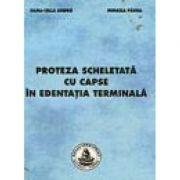 Proteza scheletata cu capse in edentatia terminala - Mihaela Pauna