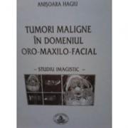 Tumori maligne in domeniul oro-maxilo-facial - Anisoara Hagiu