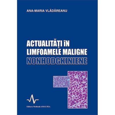 ACTUALITATI IN LIMFOAMELE MALIGNE NONHODGKINIENE (Ana-Maria Vladareanu)