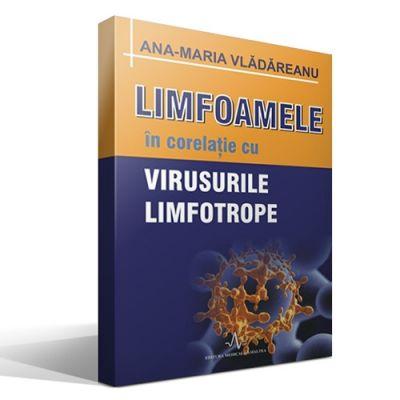 LIMFOAMELE SI VIRUSURILE LIMFOTROPE (Ana Maria Vladareanu)